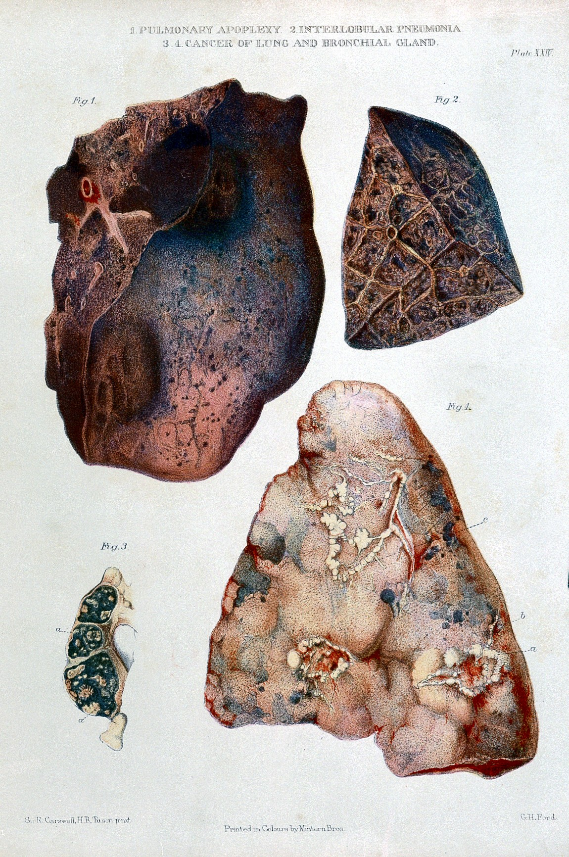 Image Result For Stage Lung Cancer