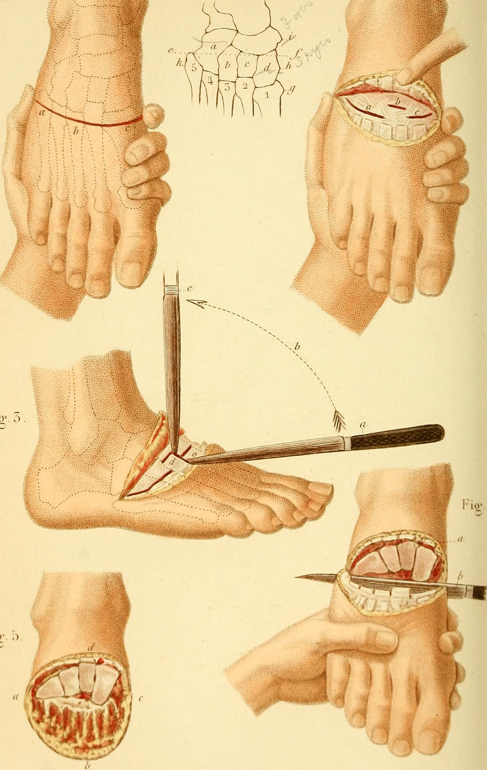 File:A text book of operative surgery and surgical anatomy (1878 ...