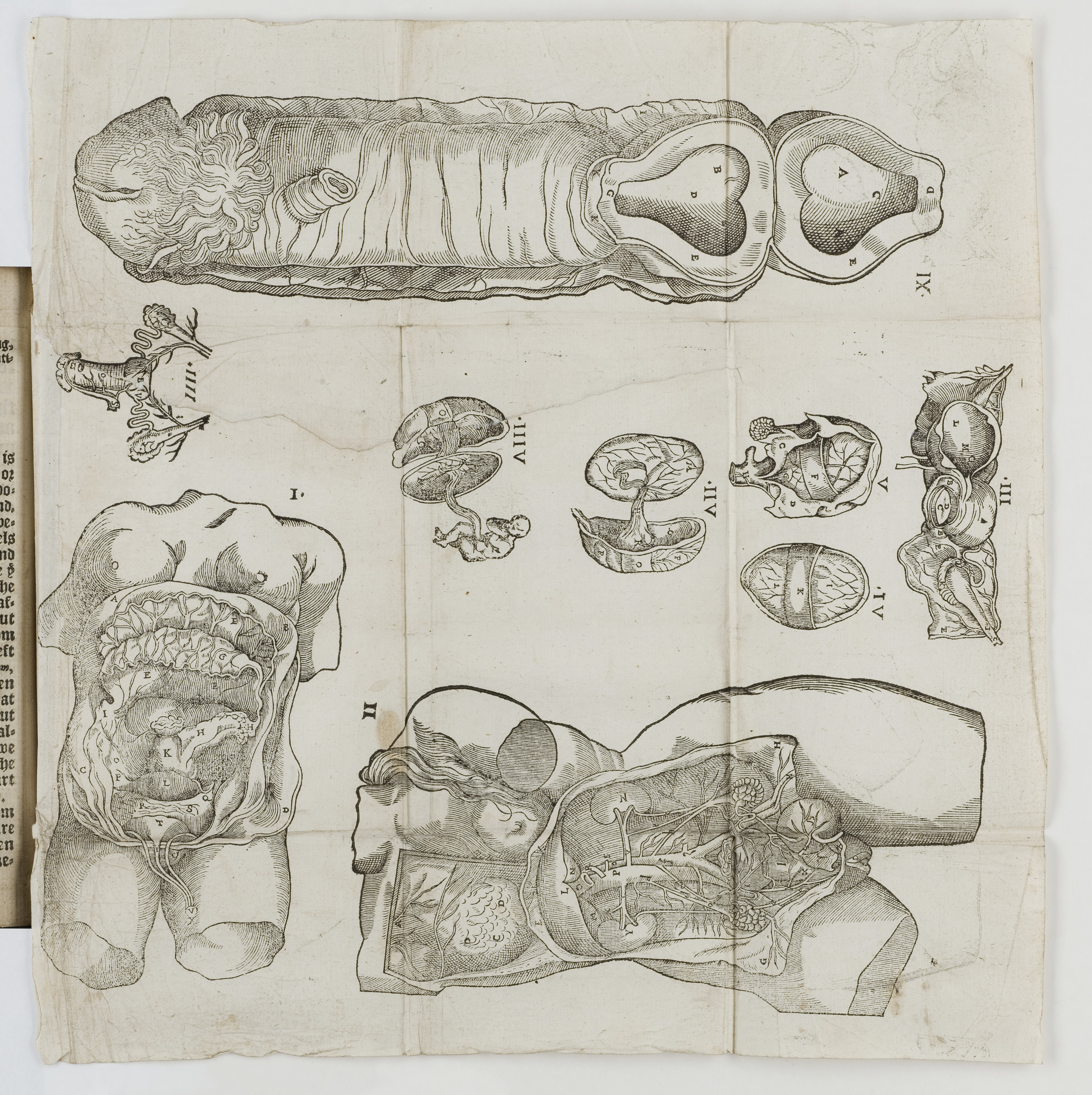 Fileanatomical Diagrams From The Birth Of Mankynde Wellcome