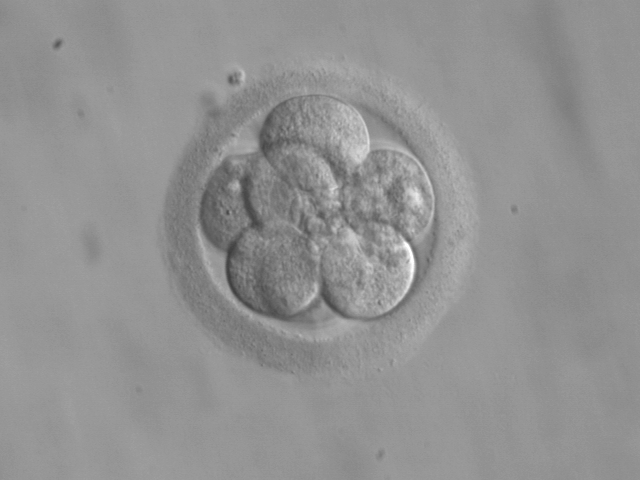 An 8-cell embryo, a couple of days after pregnancy begins.