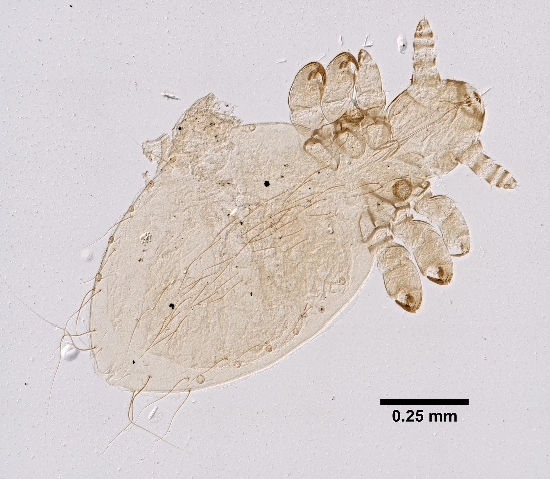"<a title=""Yale Peabody Museum of Natural History  [CC0], via Wikimedia Commons"" href=""https://commons.wikimedia.org/wiki/File:Linognathus_setosus_(YPM_IZ_099333).jpeg""><img loading="