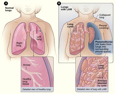 lymphangioleiomyomatosis wikiwand lung diagram cow pneumonia lung diagram
