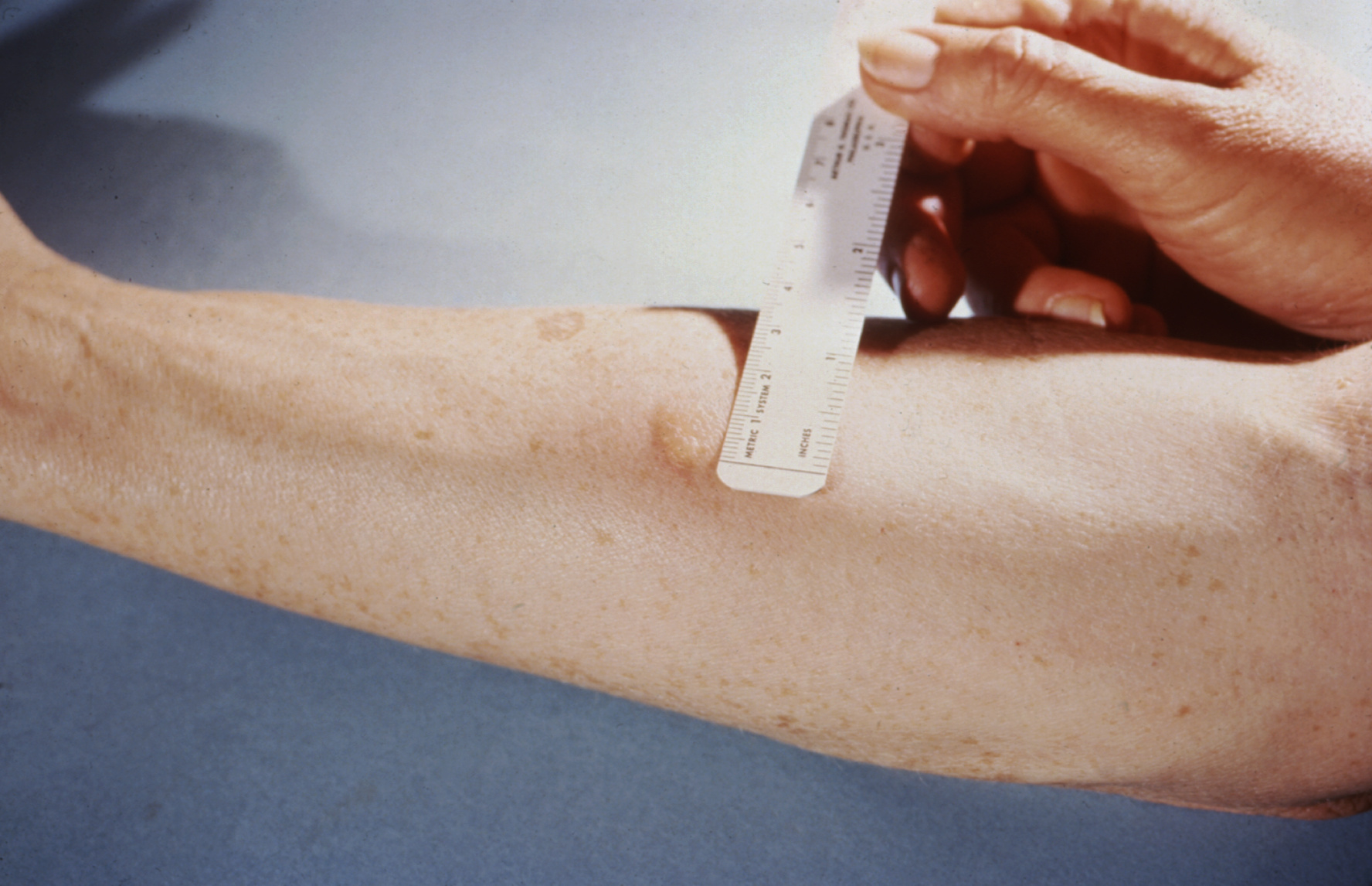 tb test reading induration quotes