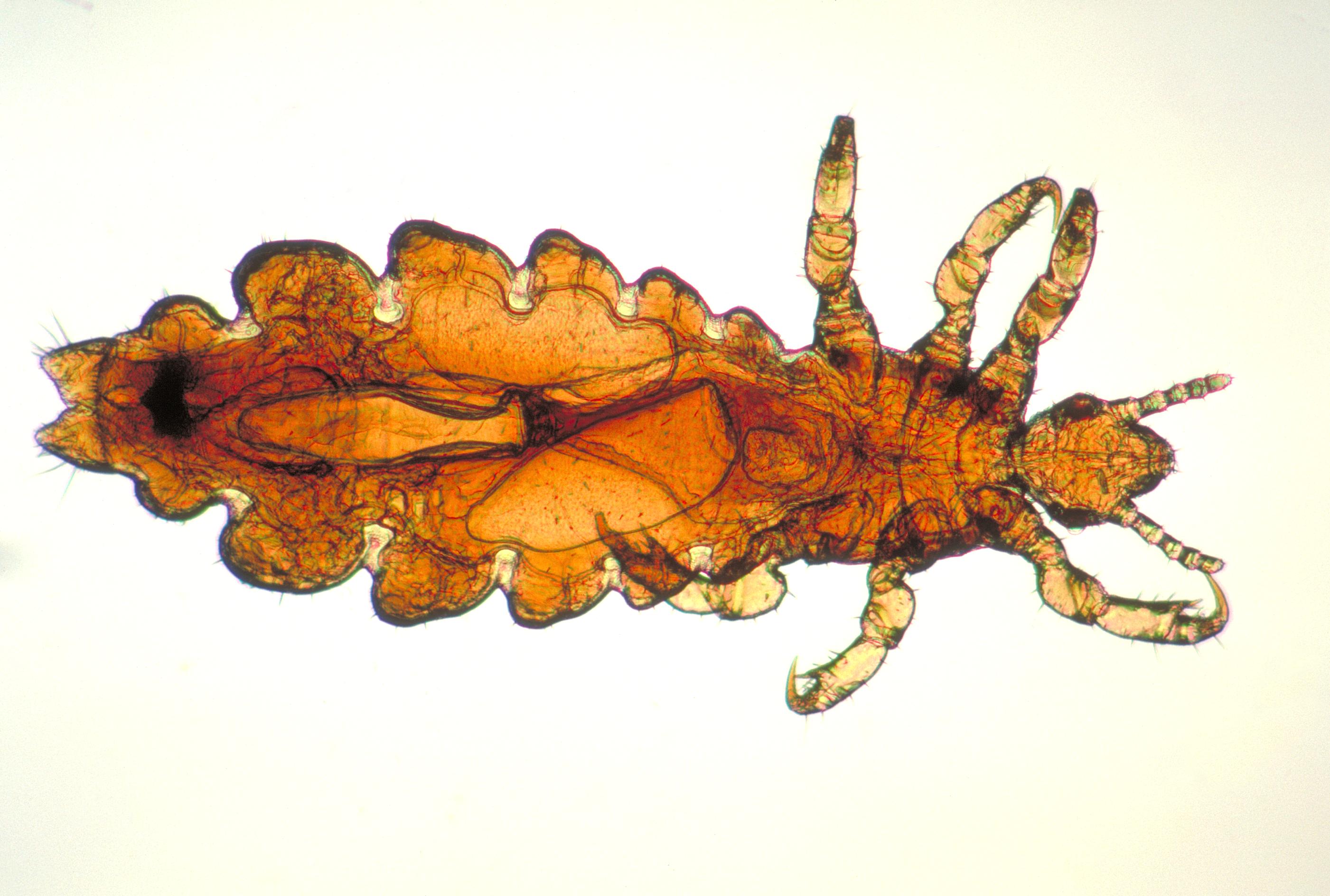 نتیجه تصویری برای Pediculus Humanus Capitis