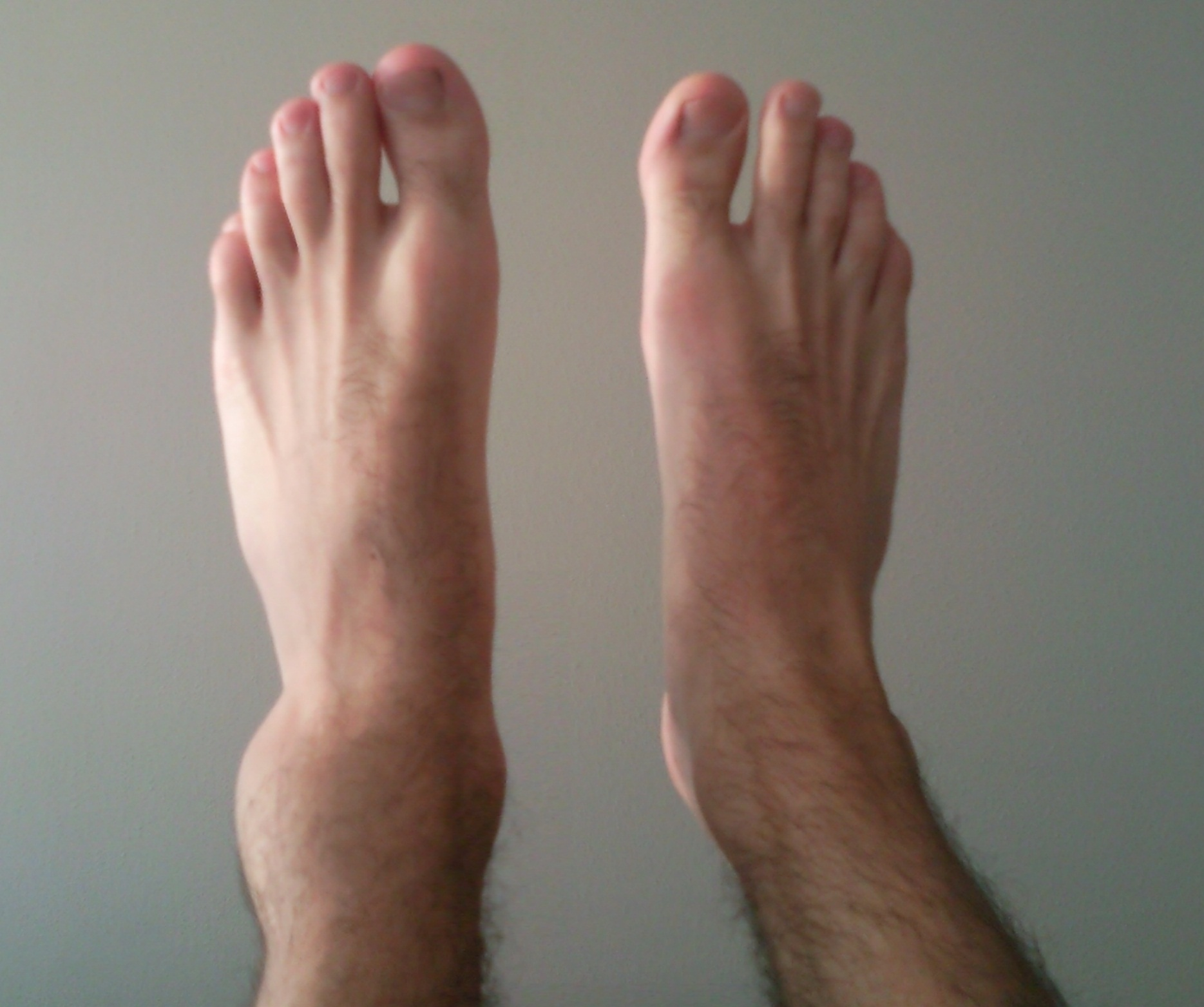 Foot and Ankle Injuries - Bay Area Foot Care