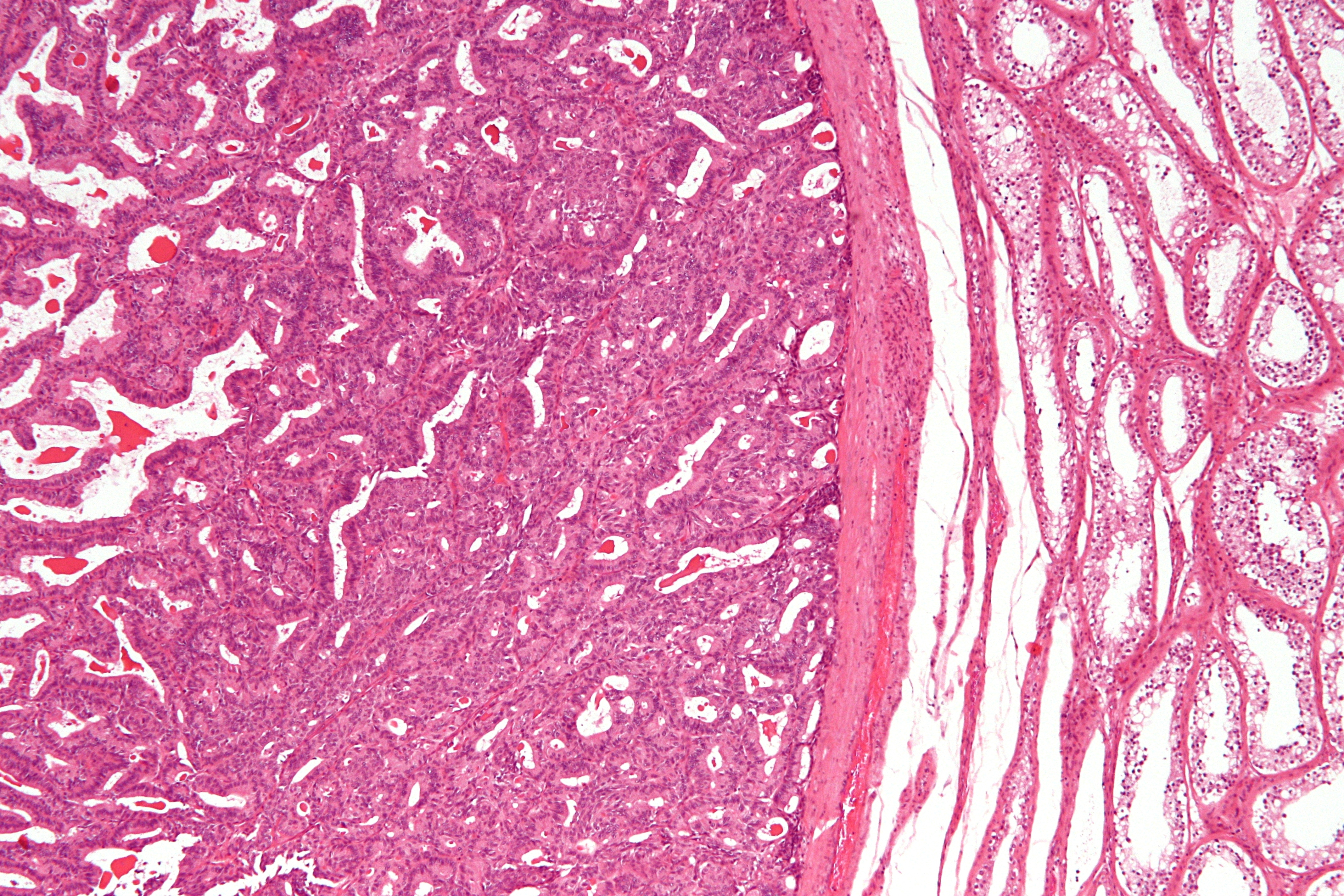 File:Adenocarcinoma of the rete testis - low mag.jpg - Wikimedia Commons