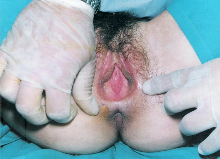 Женские гениталии с аномалиями