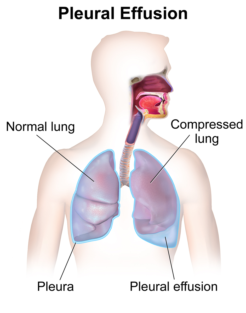 pleural effusion - wikipedia, Skeleton
