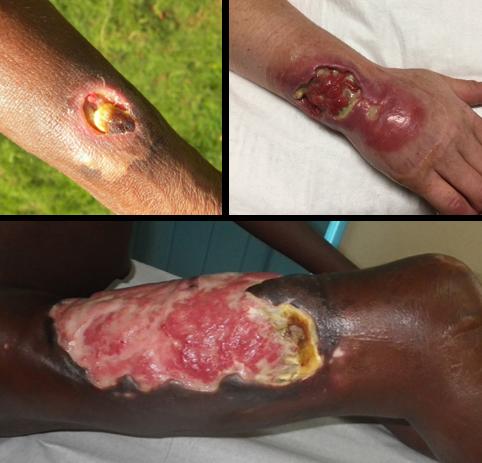 File:Buruli ulcers grouped image.png