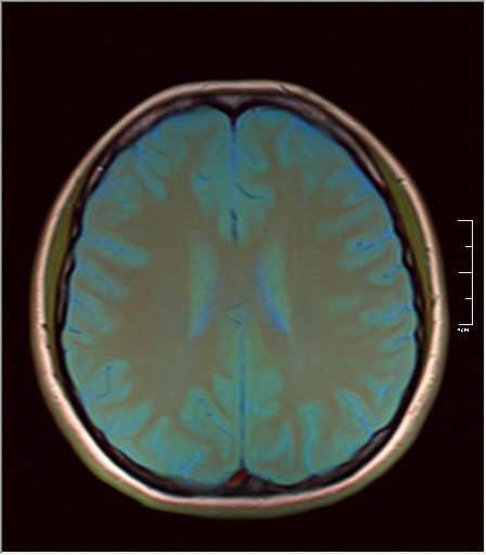 Color Brain MRI 0292 07.jpg