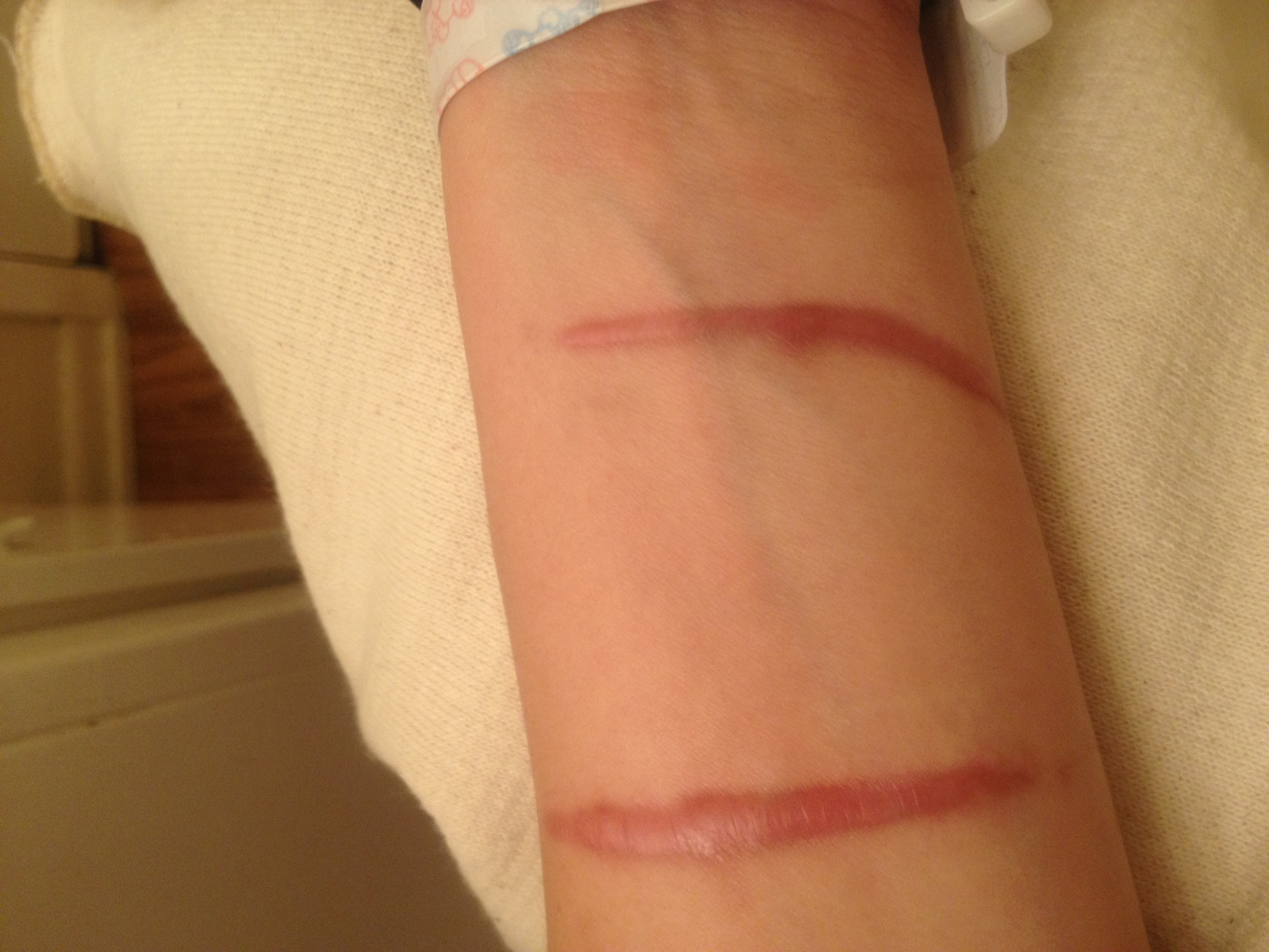 Hypertrophic scar -4 months after incident- 2013-04-05 00-46.jpg