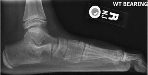 2fc6766cc89e Lateral X-ray of a flat foot with C-sign