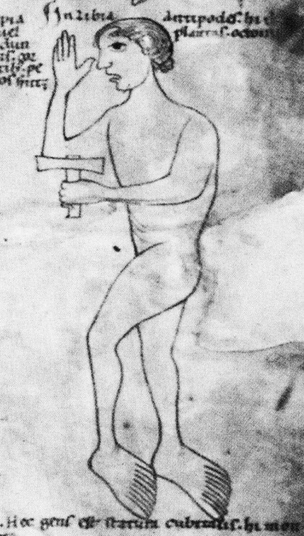 Wissenschaftsgeschichte der Polydaktylie – Wikipedia