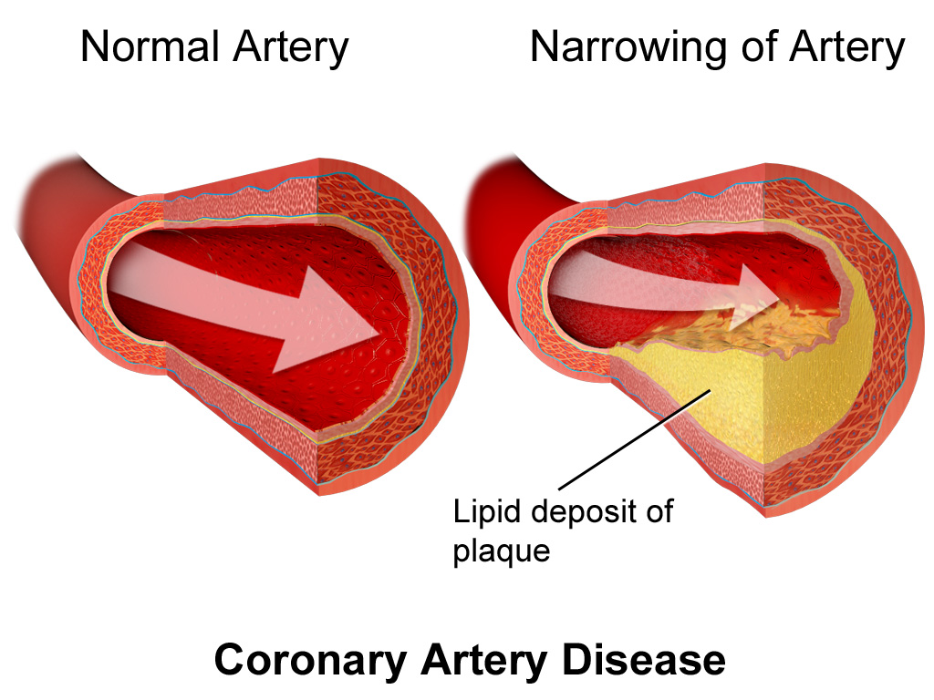 coronary artery disease - simple english wikipedia, the free
