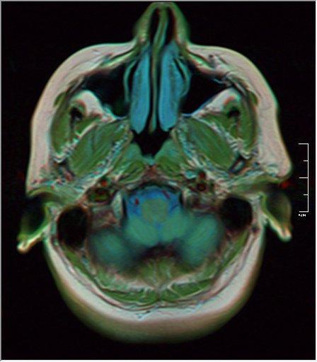 Brain MRI 0129 19.jpg