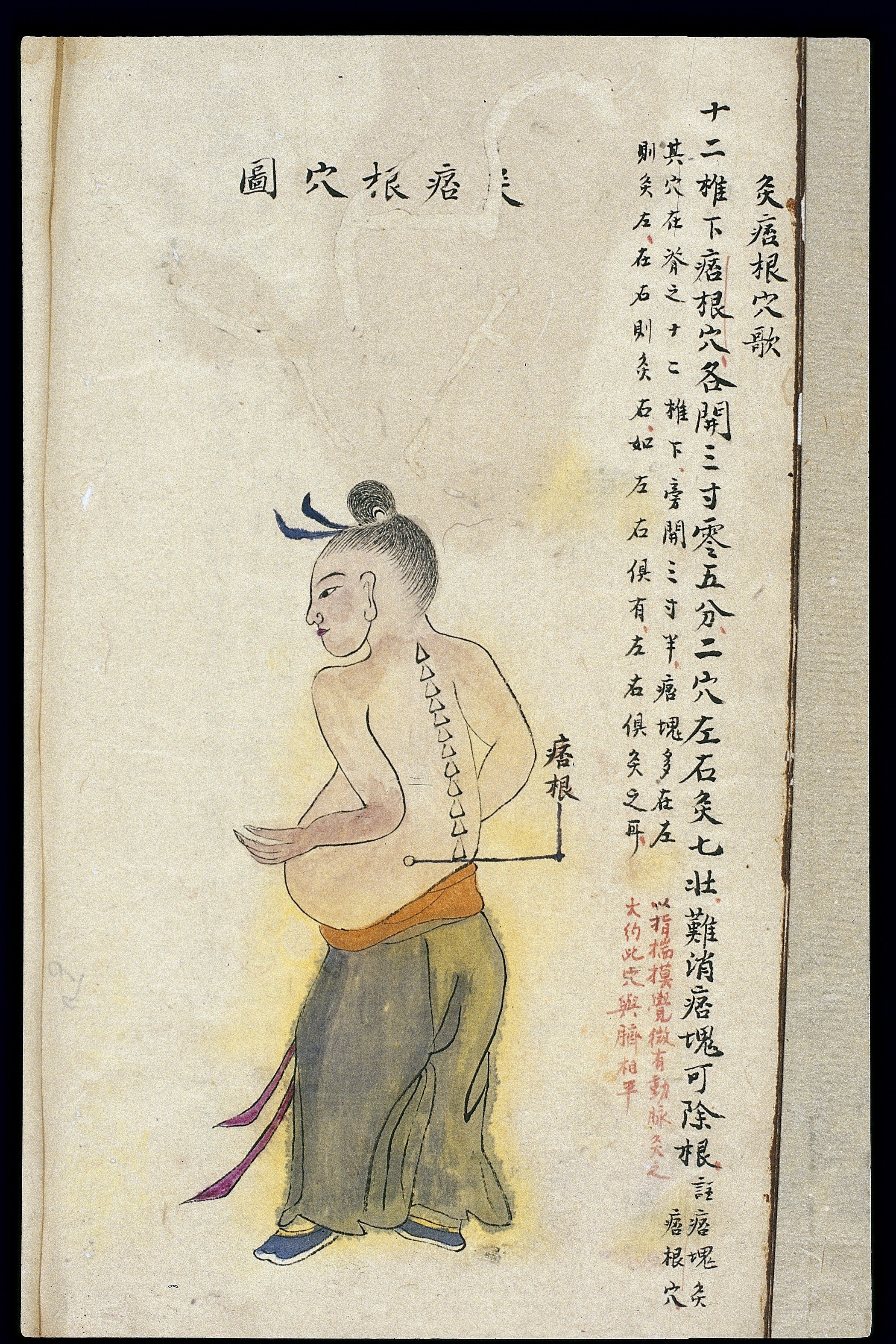 Trigger Points Chart: C19 Chinese MS moxibustion point chart; Pigen Wellcome ,Chart