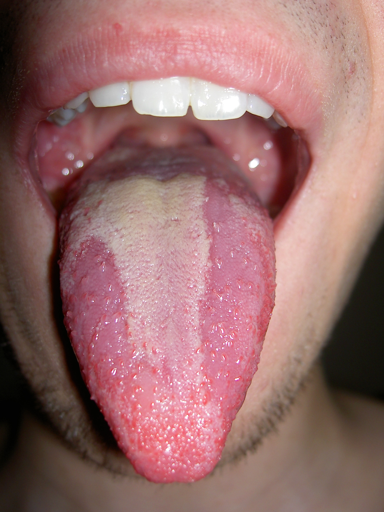 Sexual causes of throat ulcers