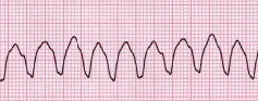 Ventricular tachycardia Fast heart rhythm that originates in one of the ventricles of the heart