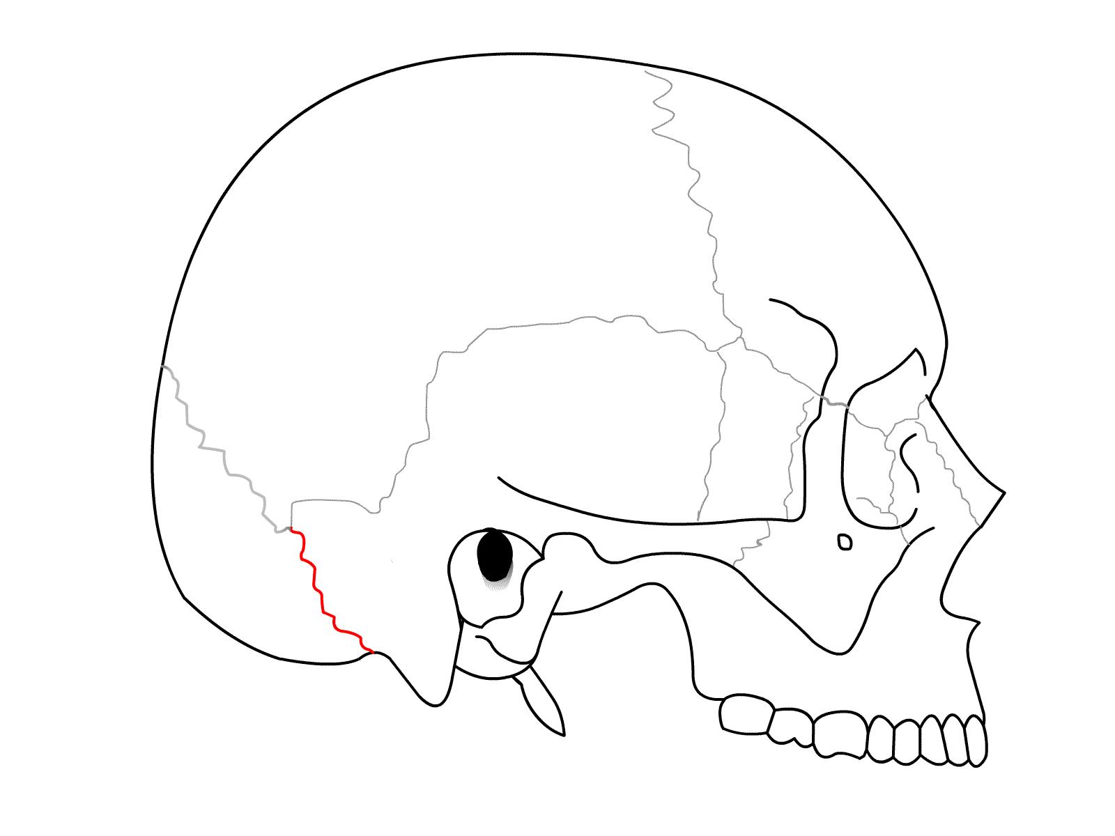 occipitomastoid suture