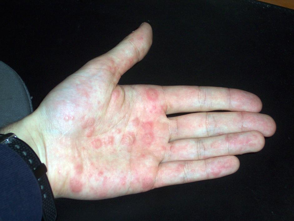 skin rash looks like burn - MedHelp
