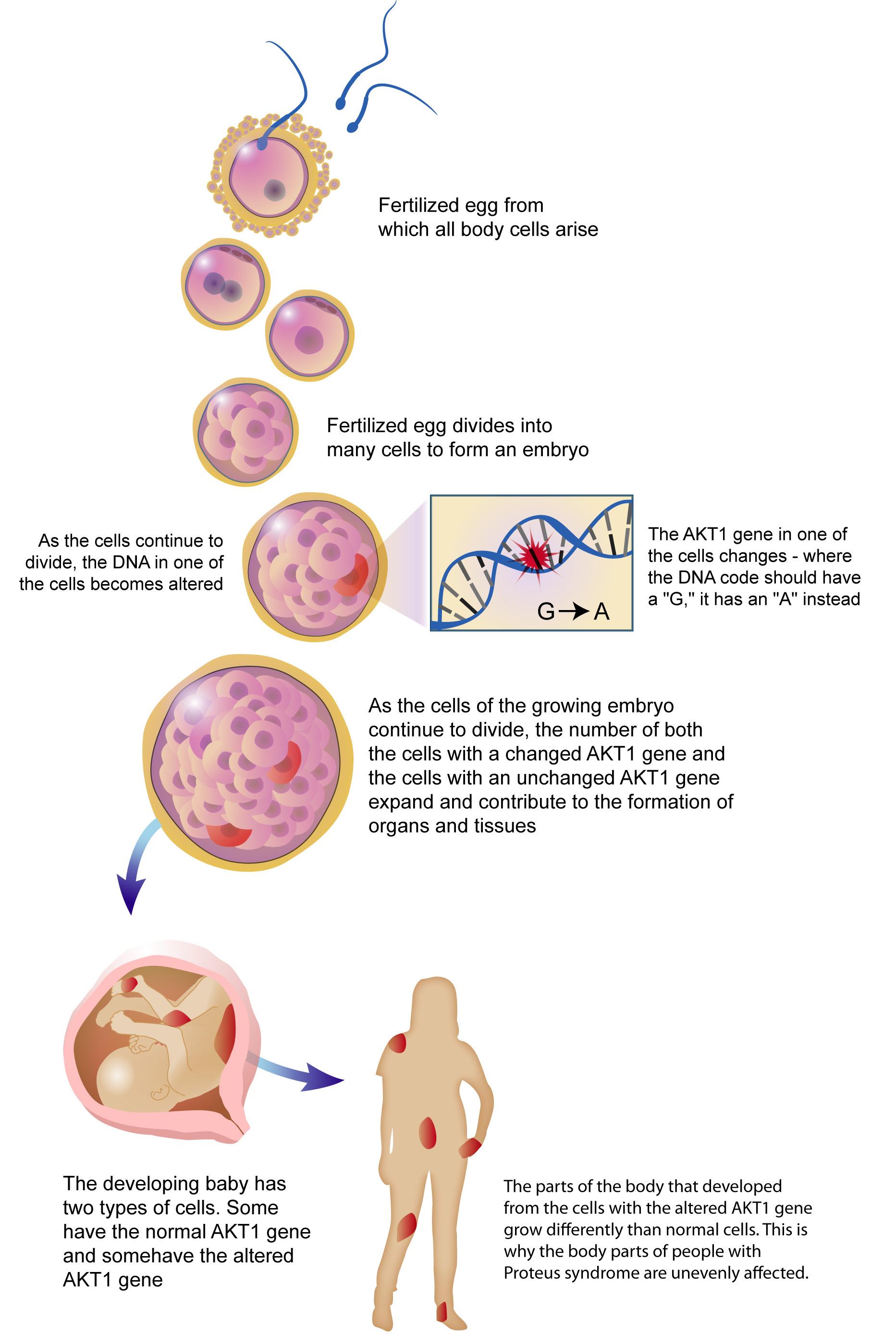 genetic mosaicism - photo #1