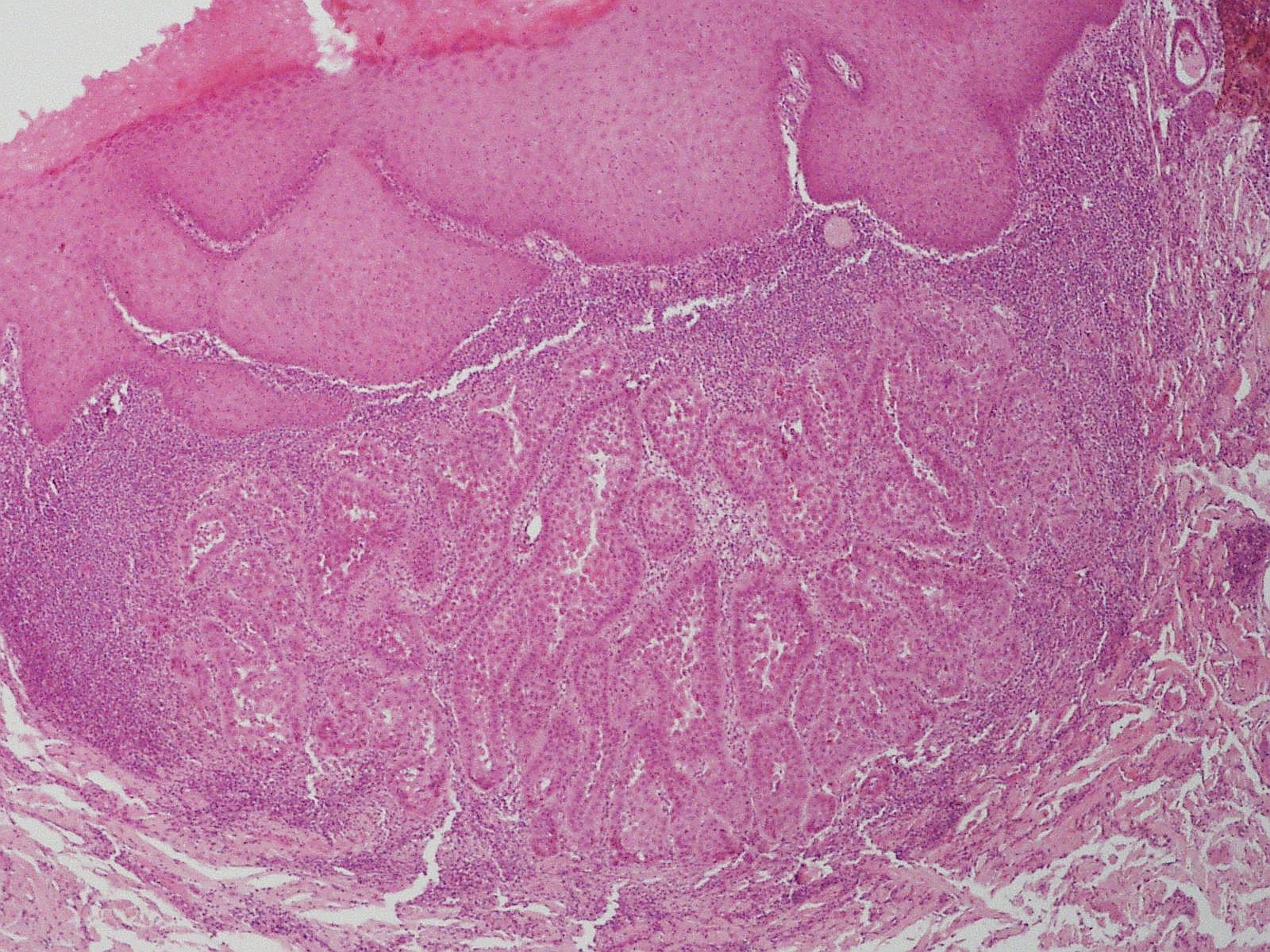 Warty dyskeratoma - Wikipedia