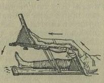 Рис. 3. Вытяжение бедра силой тяжести самой ноги.