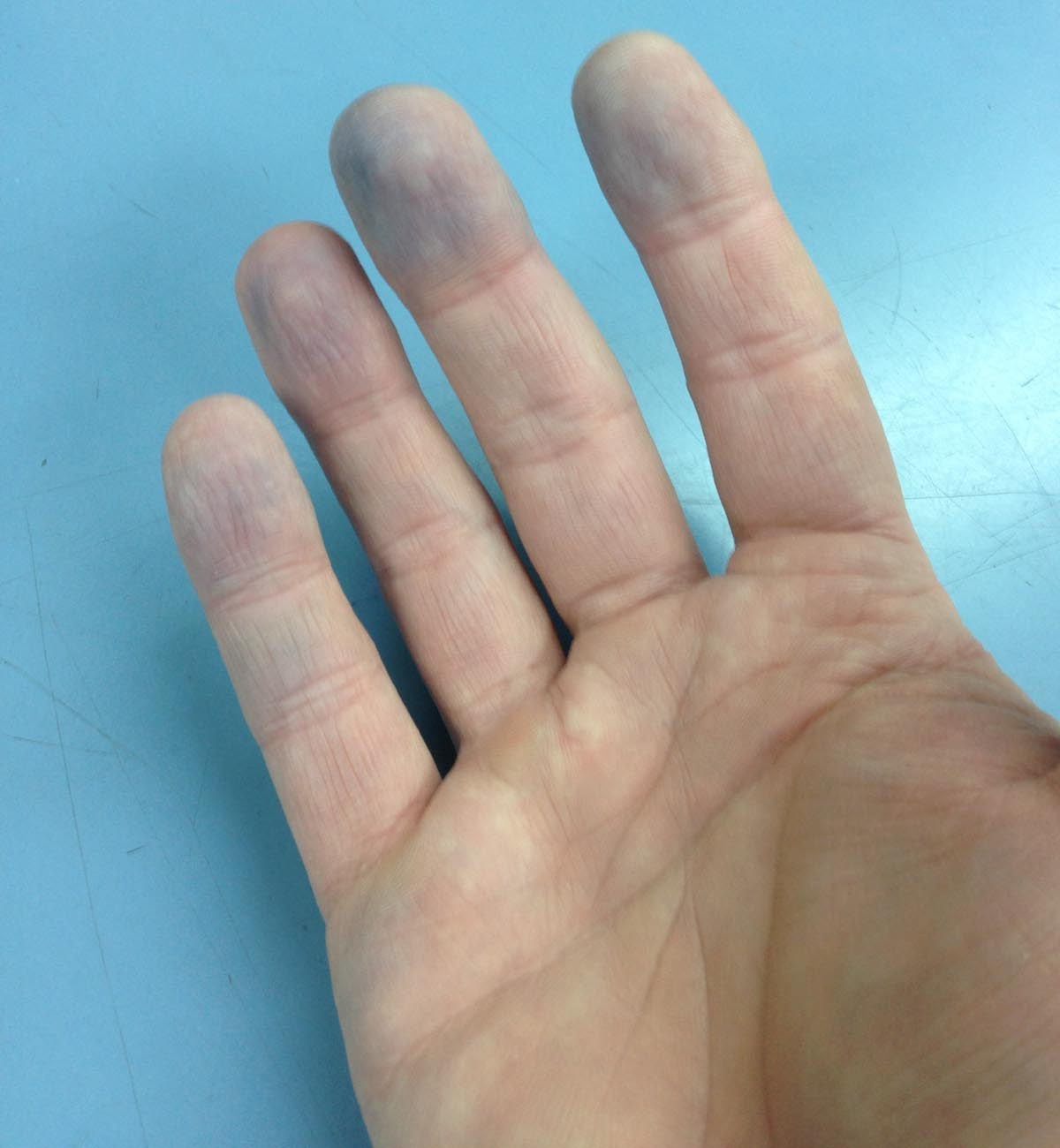 Blue finger tips