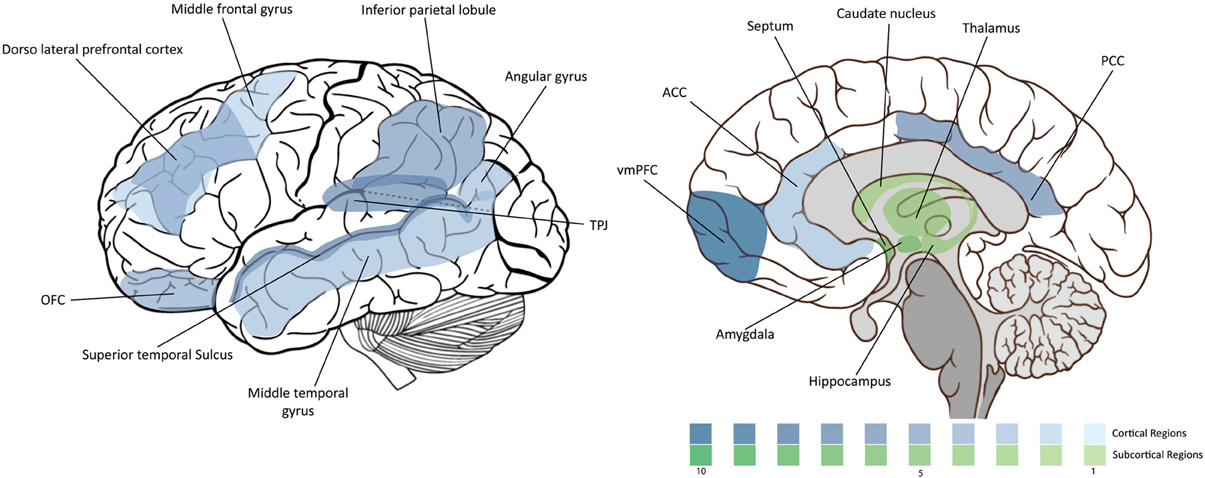 Psychopaths Brain Diagram