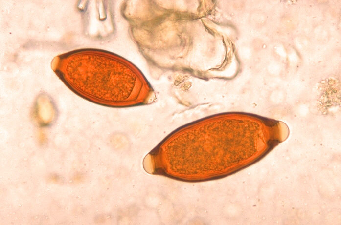 Datei:Eggs of Trichuris trichiura and Trichuris vulpis 06G0018 jpg lores.jpg