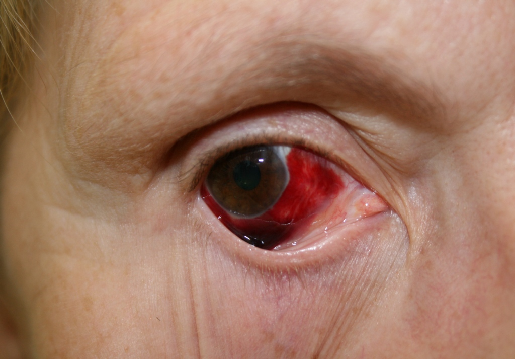 Bloodshot Eye In Dog Popped Blood Vessel