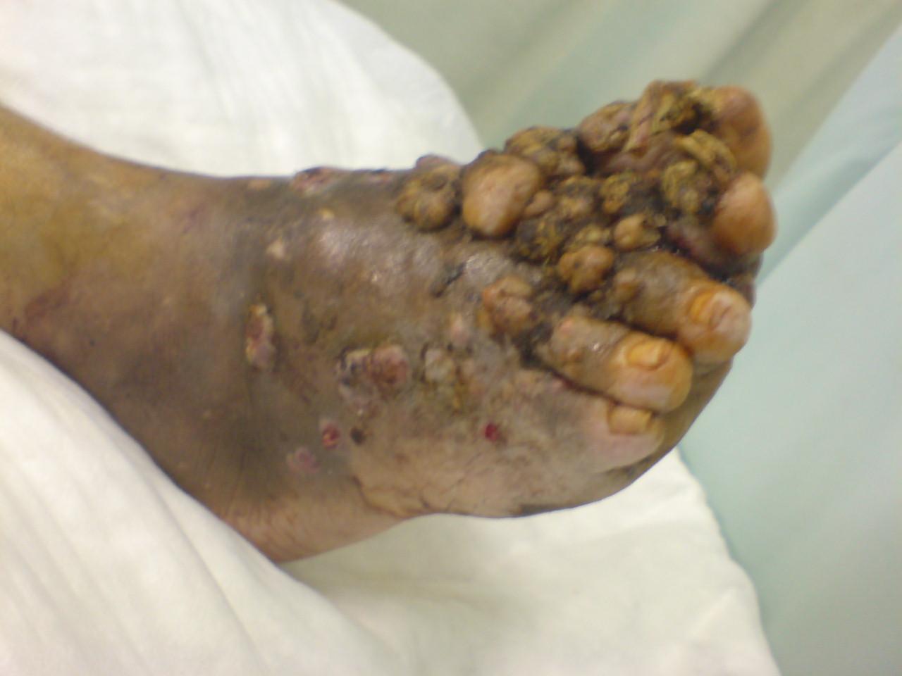 Madura Foot