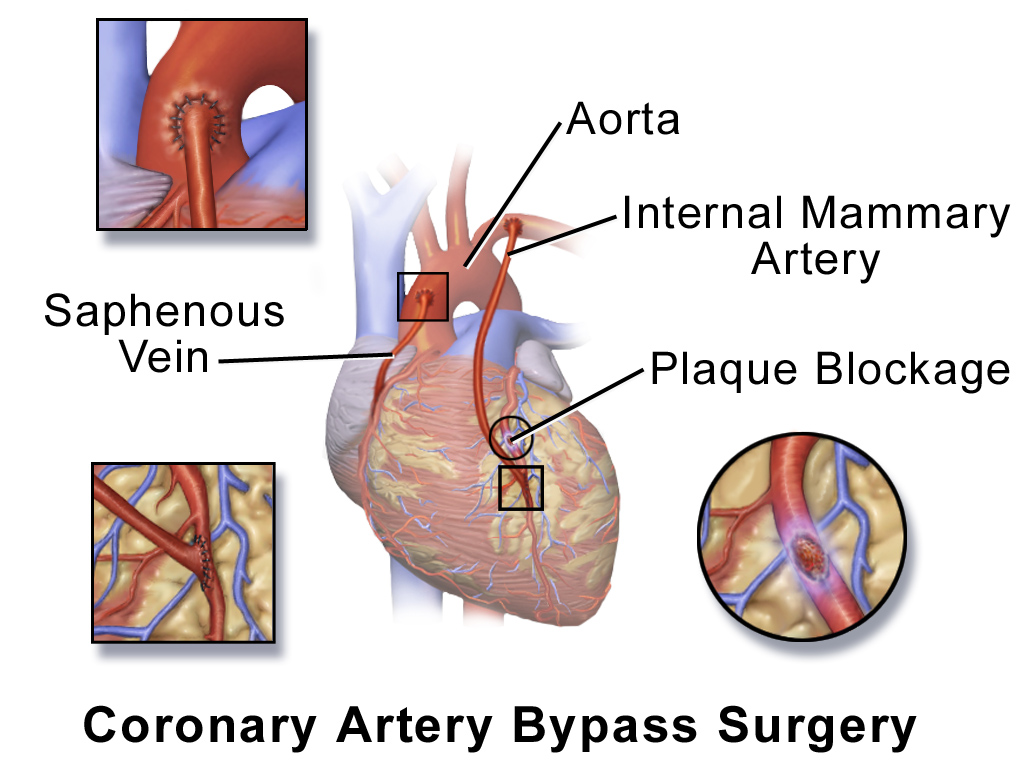 Coronary Artery Bypass Grafts (Cabg) Market in 360MarketUpdates.com