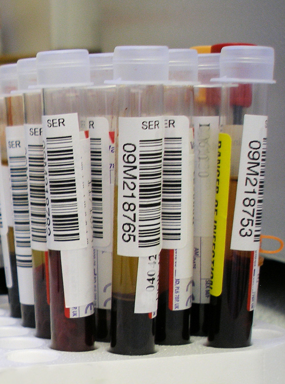File:Blood test.jpg - Wikimedia Commons