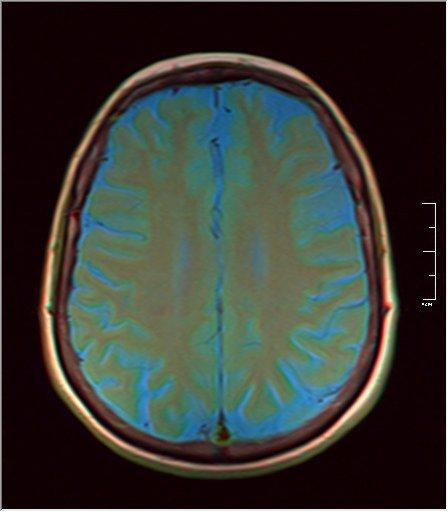 Brain MRI 0153 06.jpg