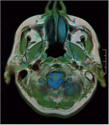 Brain MRI 19 0045 t1 pd t2.jpg