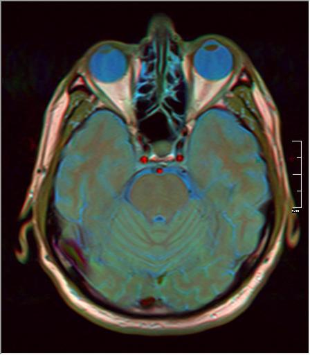 Brain MRI 293 14.png