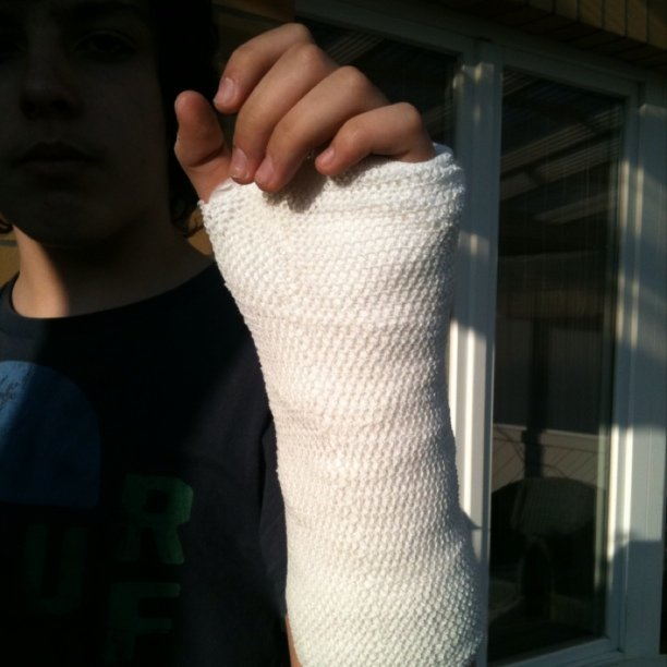 Orthopedic_cast_Vincent%27s_Gips_Arm
