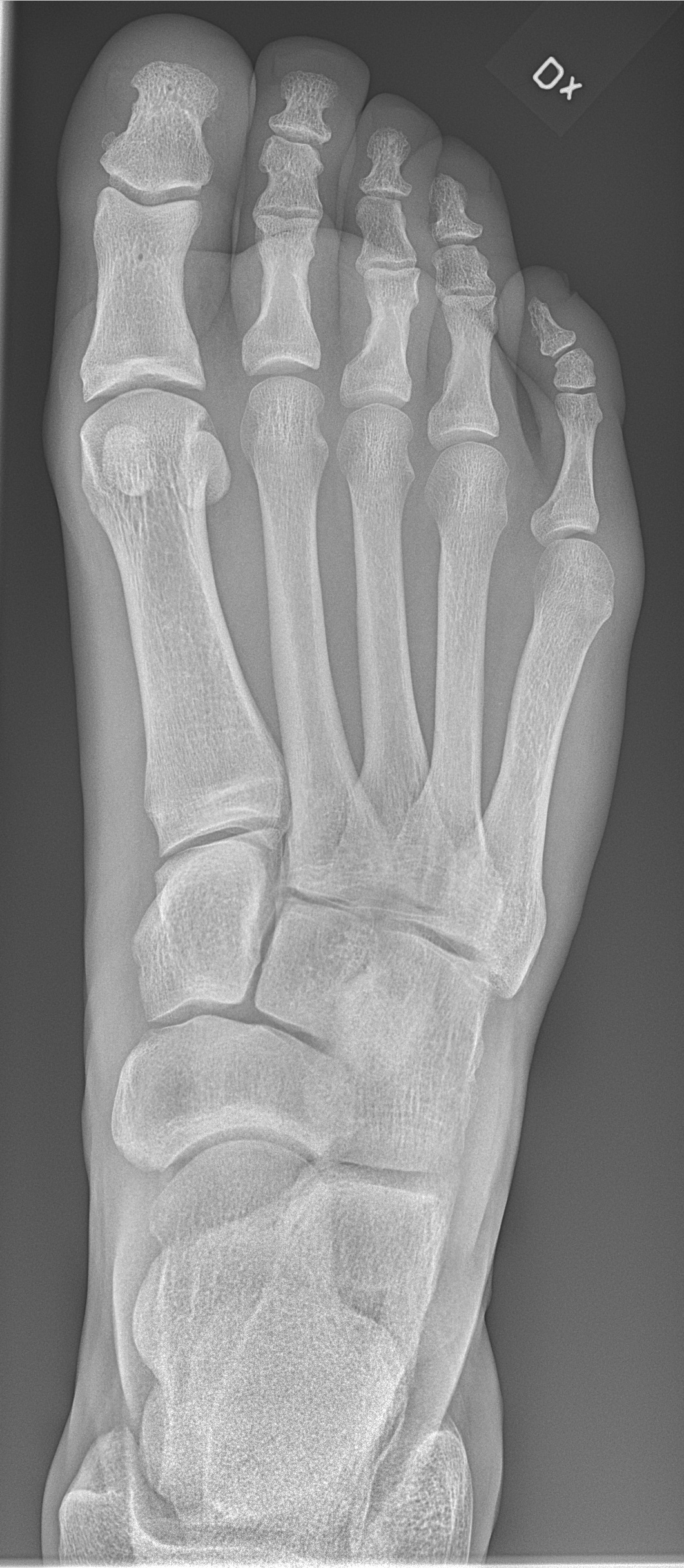 File:X-ray of normal right foot by dorsoplantar projection.jpg ...