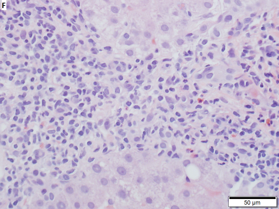 Drug induced liver injury, necroinflammatory with changes of chronic hepatitis