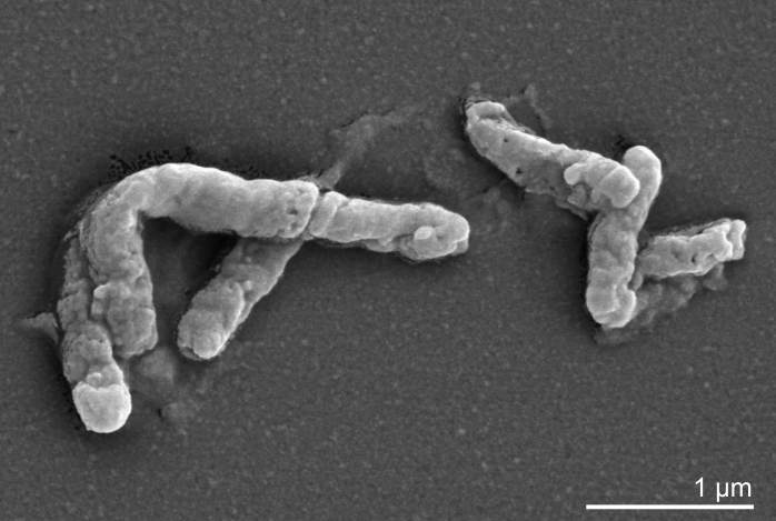 File:Acidimicrobium ferrooxidans.jpg