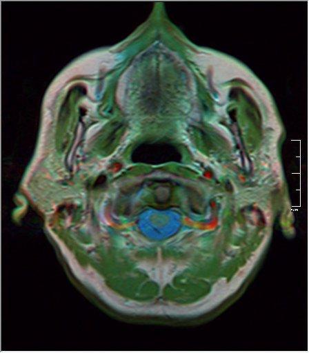 Brain MRI 20 0045 t1 pd t2.jpg