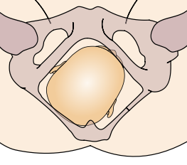 Posterior position