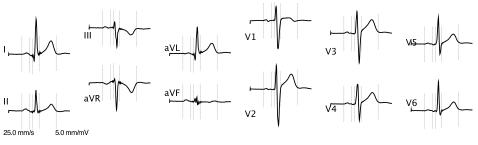 Rsr パターン 心電図