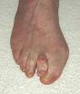 Hammer-toe-picture.jpg