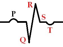 Заживающий инфаркт миокарда