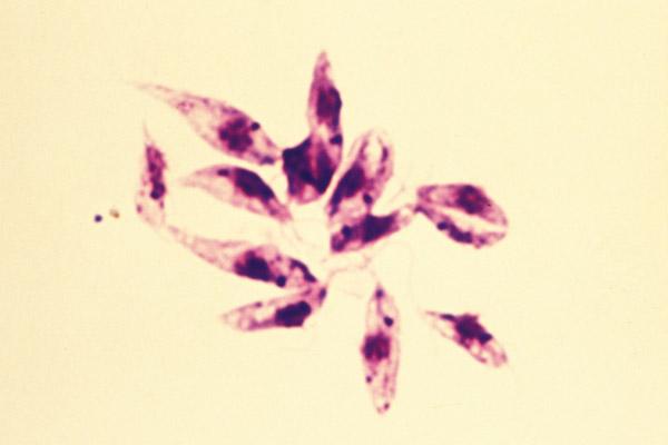 Leishmania_tropica_7.jpg