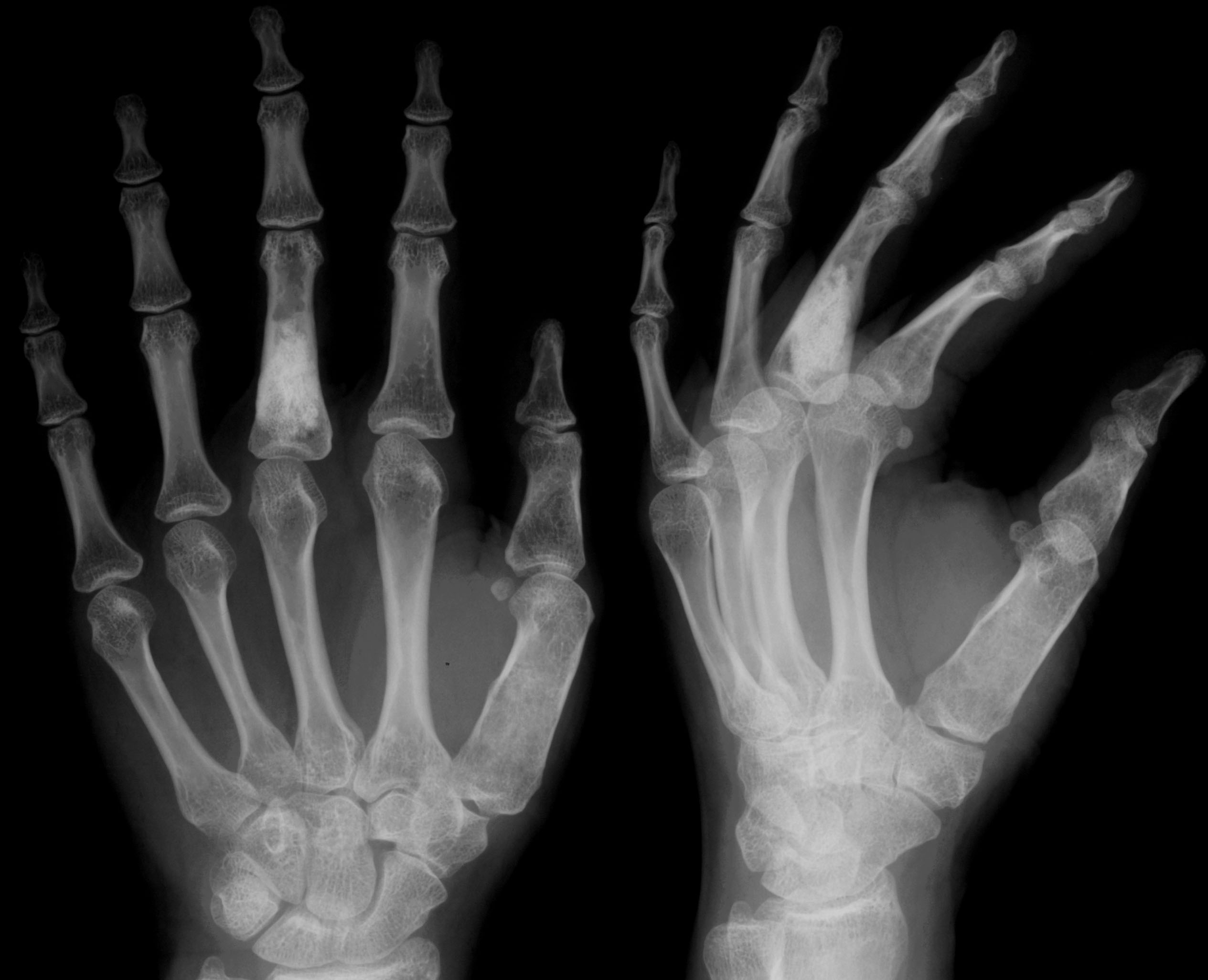 Can Cracking Knuckles Cause Food Contamination