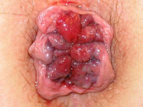 Anal herpes pictures