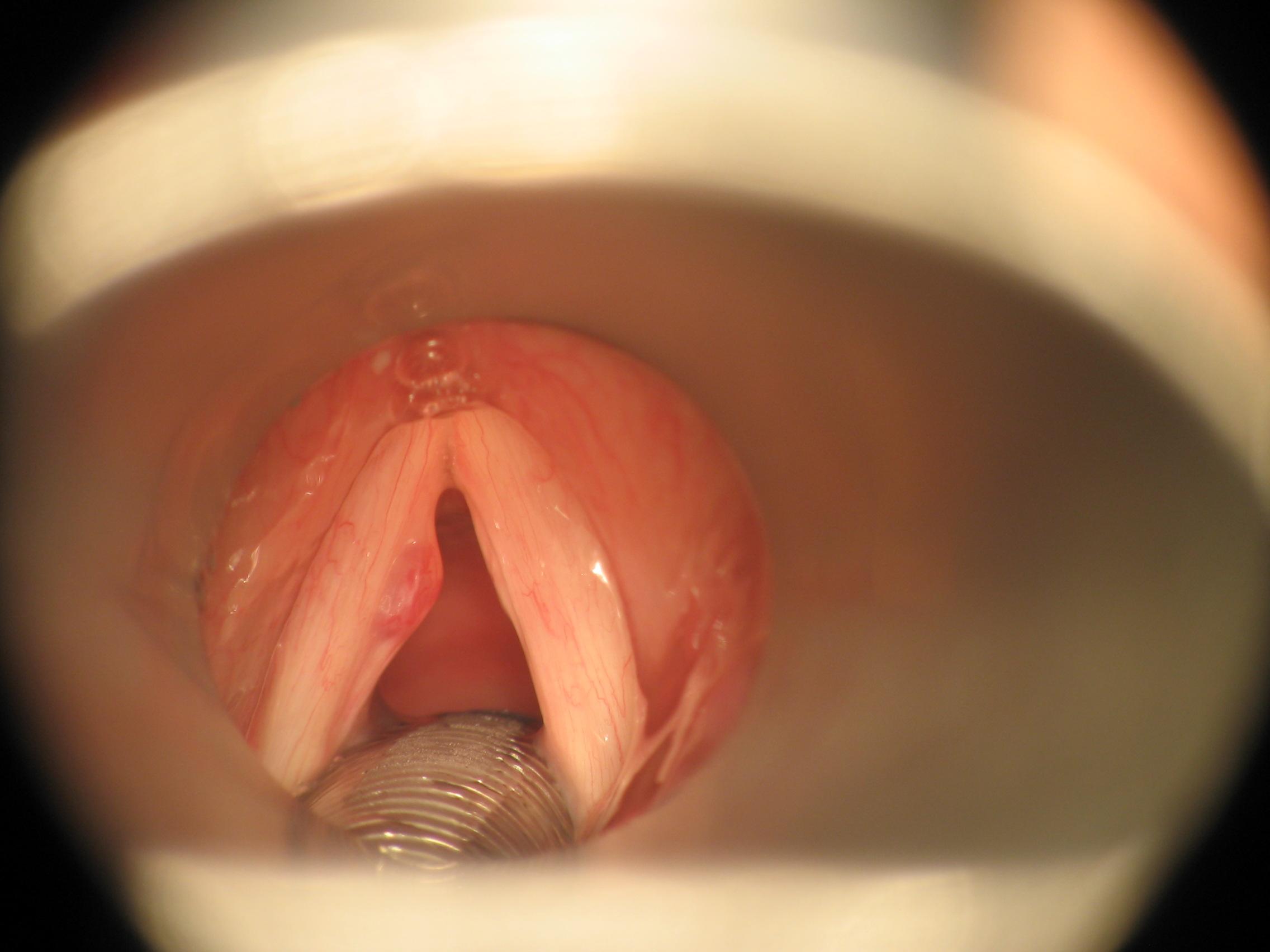 Natural tratamiento cuerdas polipos vocales